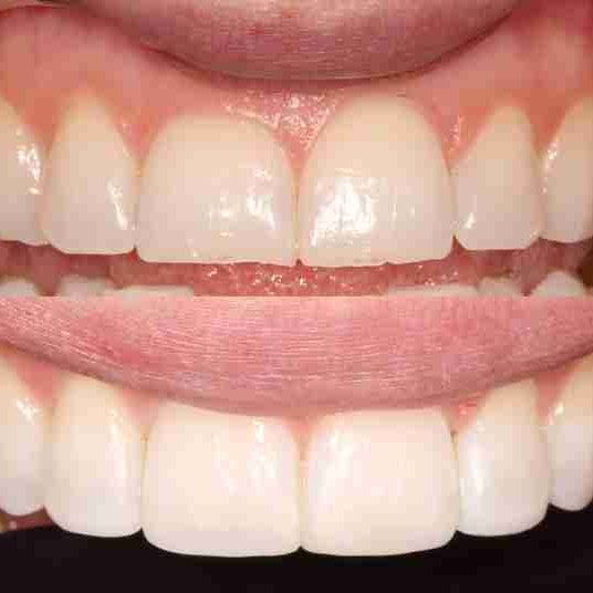 Enhance Teeth Length in London