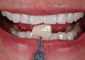 Enlighten Tooth Whitening London
