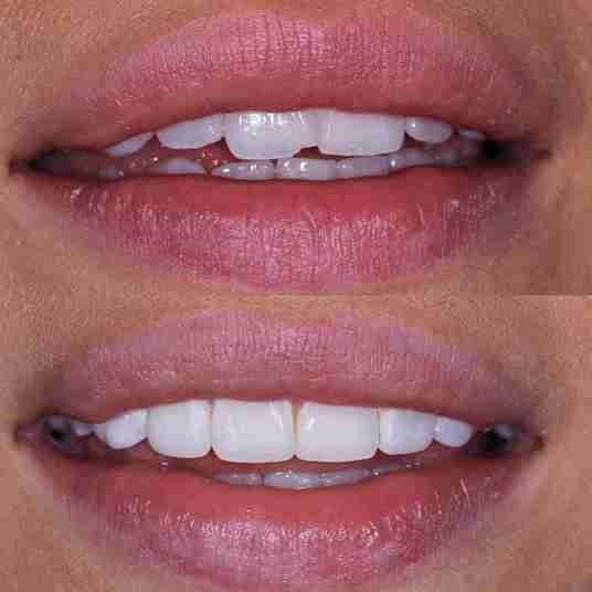 Repair Chipped Teeth in London
